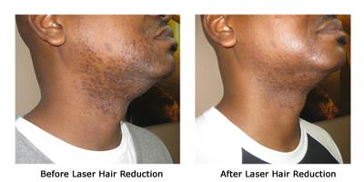 Coolglide Laser Hair Removal